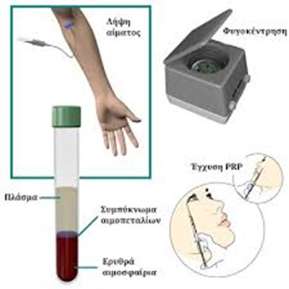 Picture of PRP - Platelet Rich Plasma - Therapy
